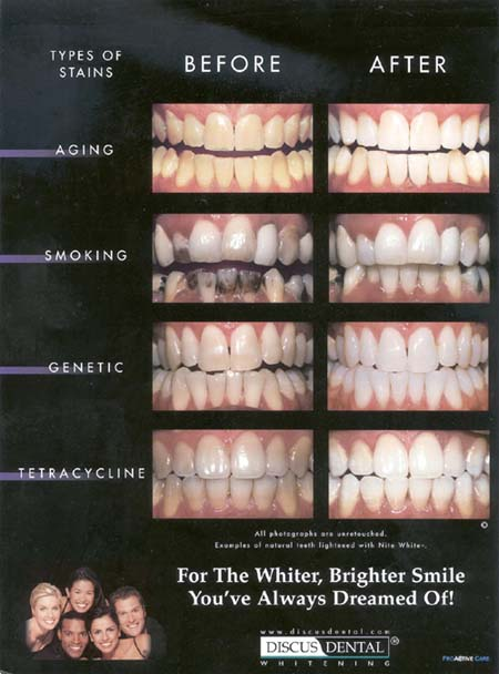 Atlanta teeth whitening