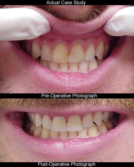 Atlanta cosmetic dentistry teeth bonding seabreeze dental atlanta cosmetic dentistry solutioingenieria Gallery