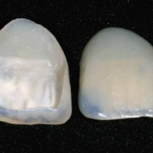 Atlanta dental veneers